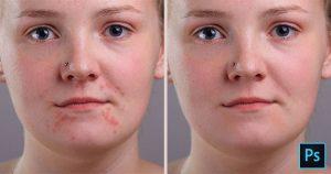از بین بردن لکههای پوستی در فتوشاپ
